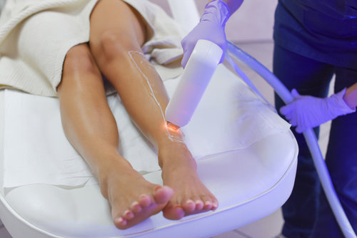 Laser Hair Removal Treatment Session