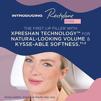 Restylane® Kysse and Tell plus Dysport®