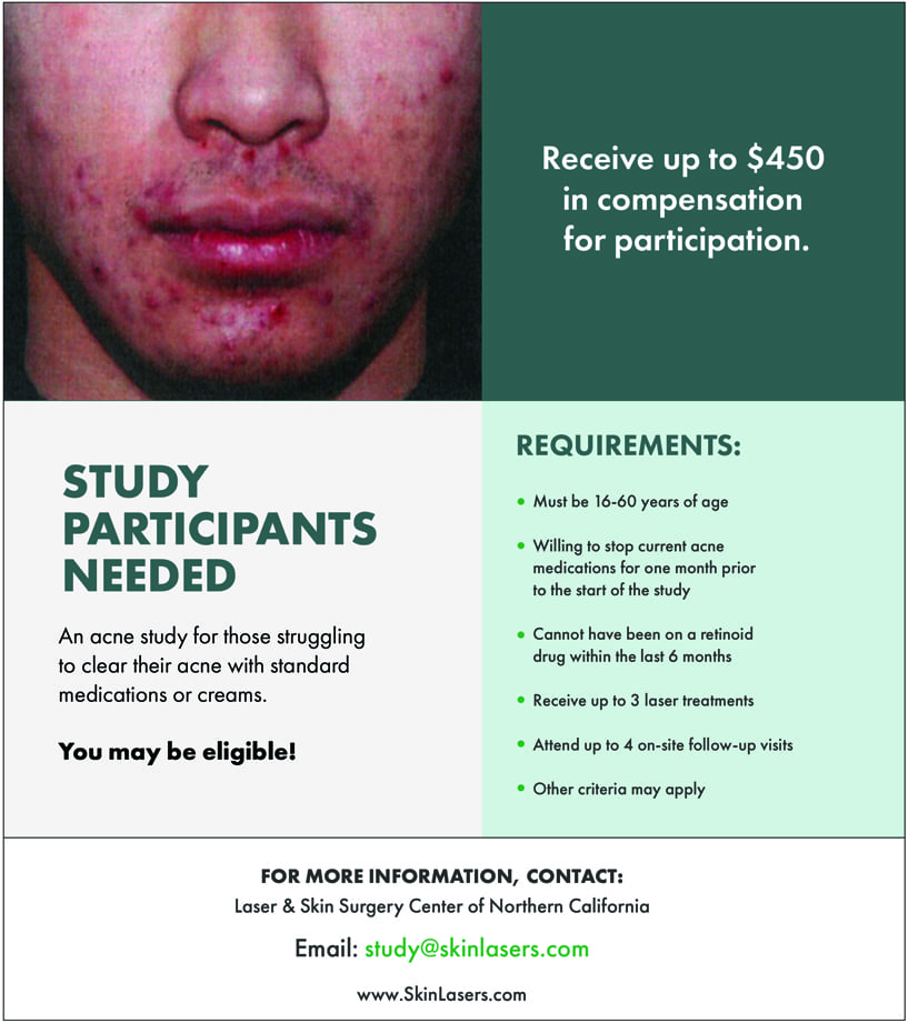 L&S Acne Study Participants Needed